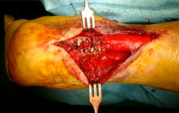 Cirugia para la ruptura del tendón de Aquiles