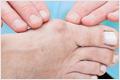 artrosis del dedo gordo - Costa Rica