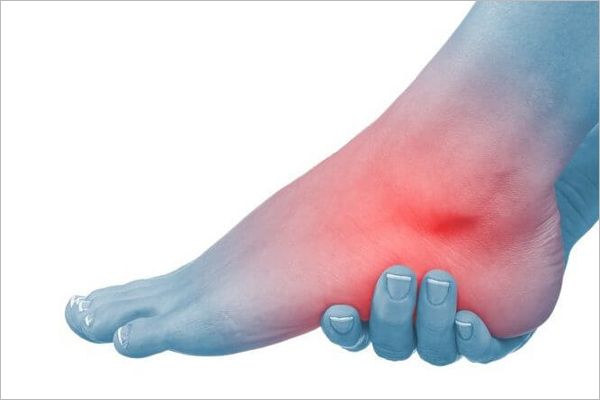 Artritis de tobillo - artritis reumatoide - Costa Rica