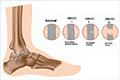 Esguinces de tobillo. Lesiones del pie y tobillo. Costa Rica