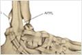 Esguince Alto de Tobillo (Lesión de la Sindesmosis)