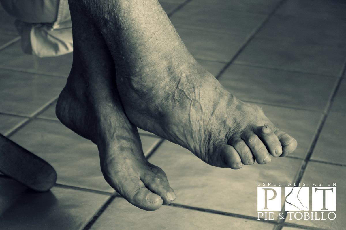 Cuidados del pie diabético - Especialistas en Pie y Tobillo Costa Rica