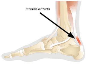 Tendinosis del tendón de aquiles - Pie y Tobillo Costa Rica - Lesiones de pie
